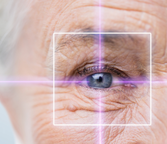 Older woman's eye close up with a laser graphic over it